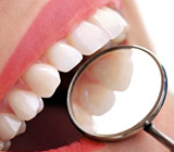 Tooth-ColoredFillingsANatural-LookingAlternative