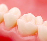 Tooth-ColoredFillingsTrueorFalse