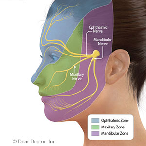 FacialNervePaincanbeManagedwithEffectiveTreatment
