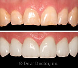 veneers before after.