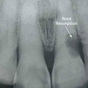 EarlyActionNeededtoSaveYourToothfromRootResorption