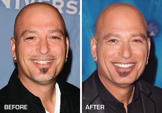 Howie Mandel Before and After Porcelain Veneers.