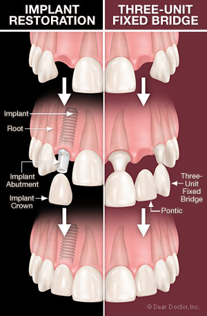 Dental implants vs bridgework.