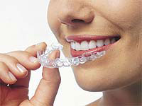 Invisalign orthodontics.