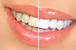 Teeth Bleaching.