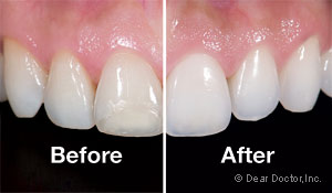 veneers before and after.