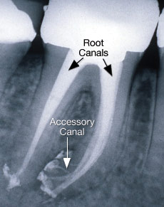Accessory Root Canals X-ray