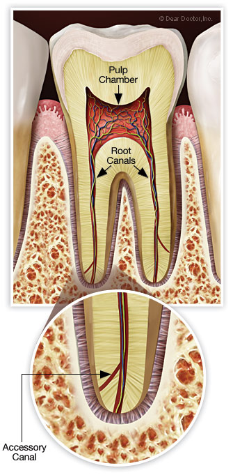 Accessory Root Canals