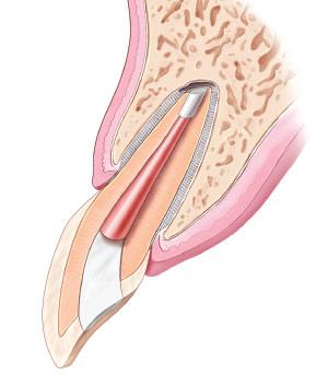 Apicoectomy - Healing.