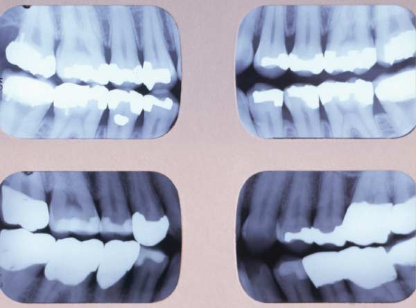 Series of 4 bitewing radiographs.