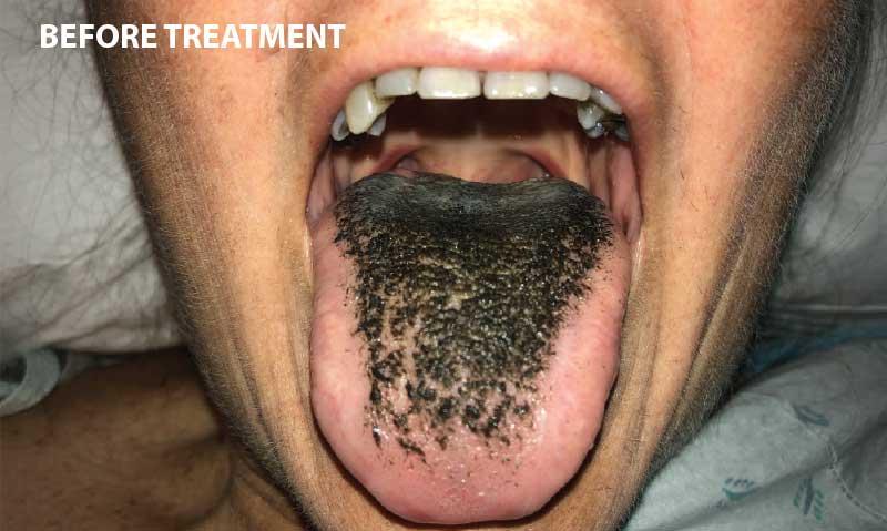 Black Hairy Tongue - Before Treatment.