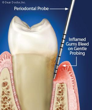 Bleeding gums illustration.