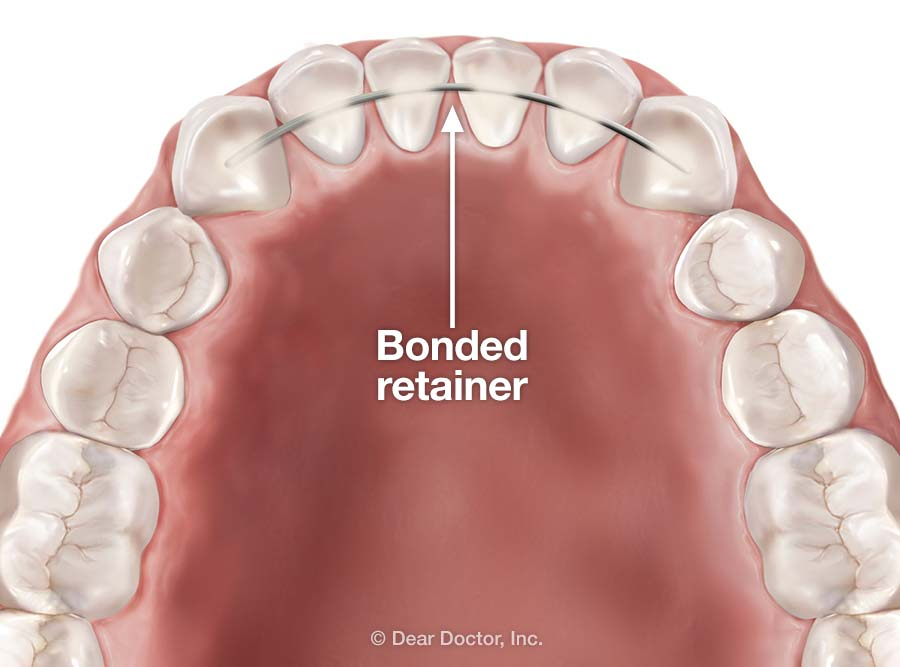 Image result for retainer permanent""