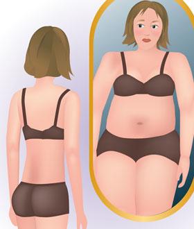 Bulimia anorexia and oral health.