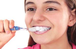 Brushing teeth with braces.
