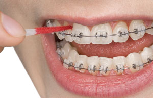 Wearing while braces gums swollen This Is
