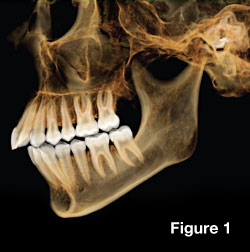 CAT scans in dentistry