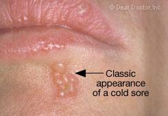Cold Sores | Dear Doctor - Dentistry & Oral Health