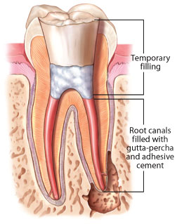 Root Canal Treatment Dear Doctor Dentistry Amp Oral Health