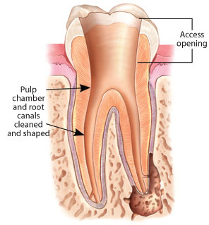 Root canal pulp chamber