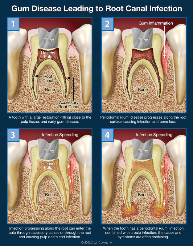 Confusing Tooth Pain