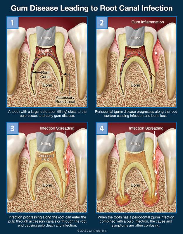 hurt teeth wisdom gums near