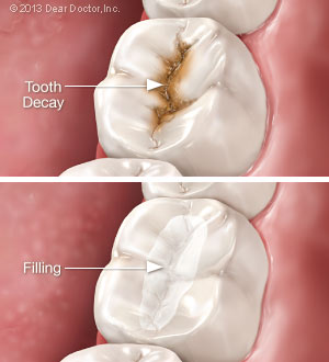 Tooth decay vs fillings.