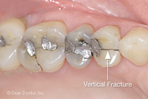 crack in tooth nerve pain
