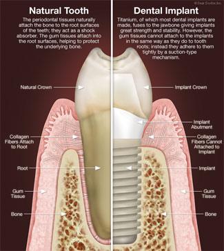 Dental Implant Maintenance Implant Teeth Must Be Cleaned
