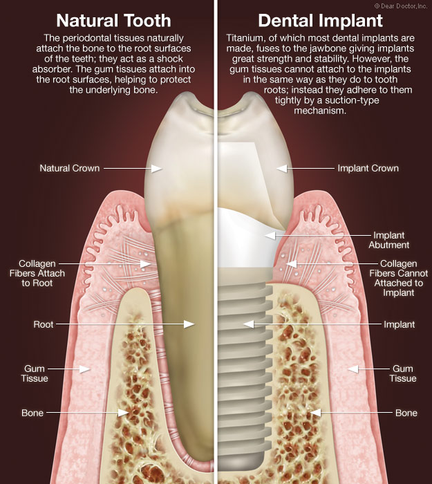 Dental implants vs natural teeth.