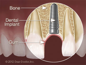 Dental implant placed.