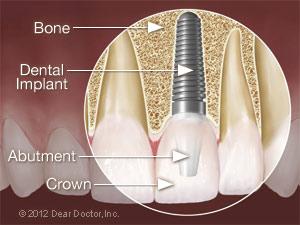 Dental implant surgery.