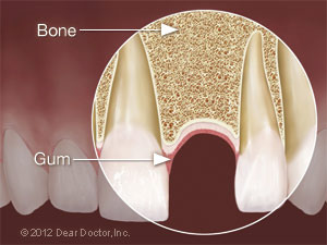 Ideal dental implant site.
