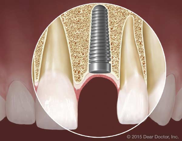 Dental implants and diabetes.