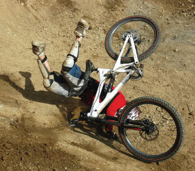Bike accident requiring dental implants.
