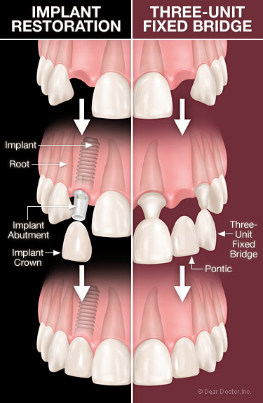Dental implants vs bridgework