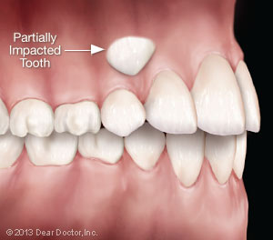 Partially impacted tooth.
