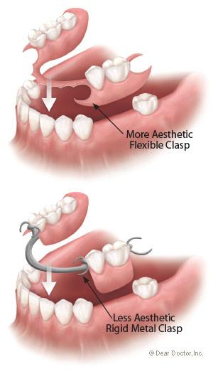 instant smile teeth veneers отзывы