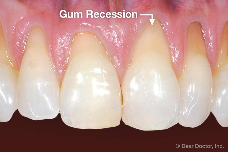 Gum recession.