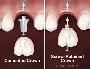 Cemented crowns versus screw-retained crowns