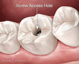 Dental implant screw access hole.