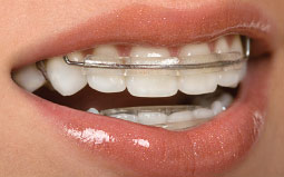 Orthodontic retainer on teeth.