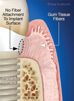 No fiber attachment to the implant surface