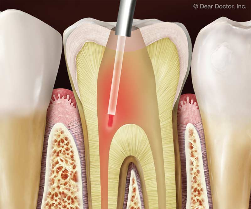 Laser-Assisted Root Canal Treatment.