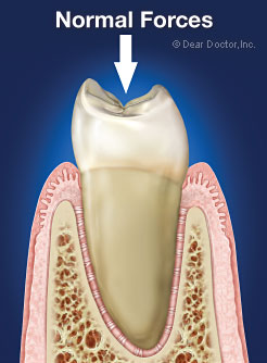 Healthy tooth with normal forces.