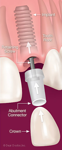 Dental implant assembly.
