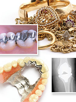 Metal allergies to dental implants.