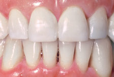 Minor tooth movement