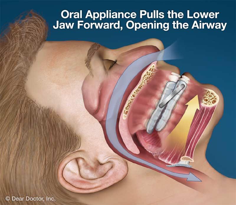 Oral Appliance For Sleep Apnea.
