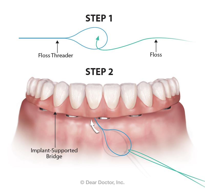 Flossing under implant-supported bridge.